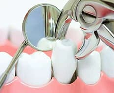 antalya-dental-extraction