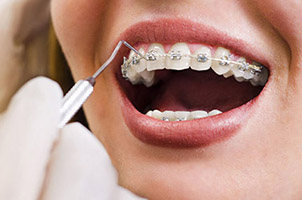 Antalya Traitement Orthodontique